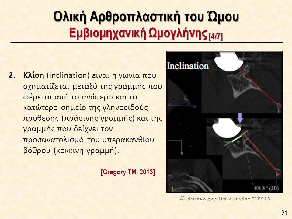 Ολική Αρθροπλαστική του Ώμου Εμβιομηχανική Ωμογλήνης [5/7]